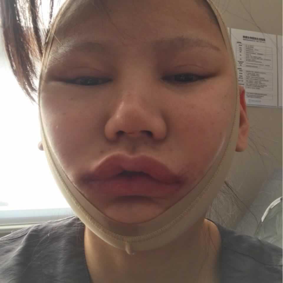 在韩国做的V-LINE瓜子脸手术半年多了,颜值巅峰啊。