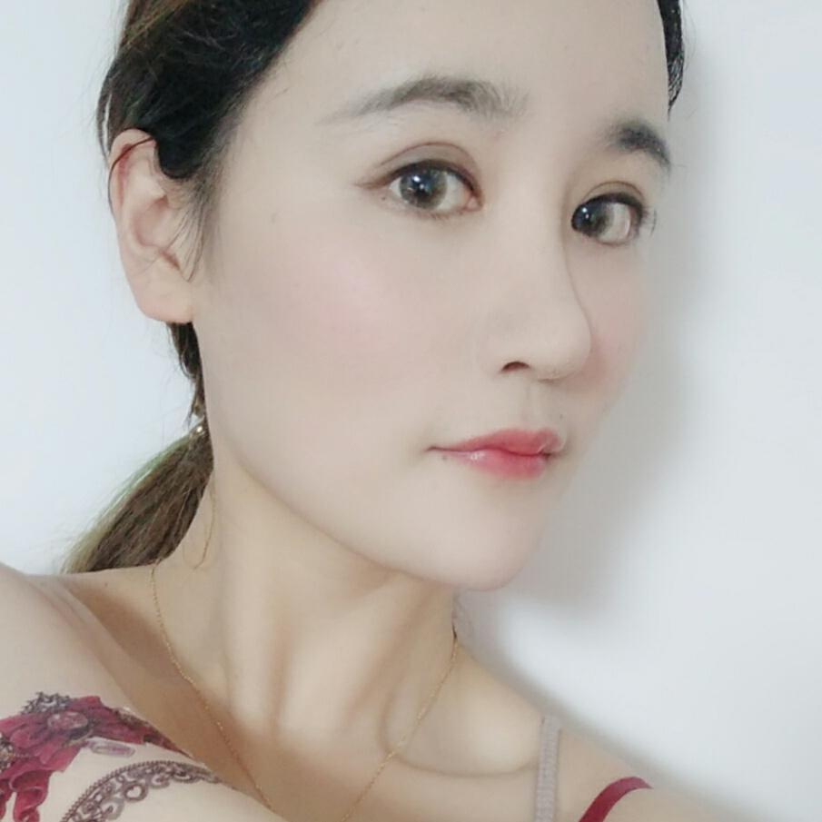 我在韩国做的是轮廓三件套,包含下巴,下颌角,颧骨,整体风格走得是童颜风!
