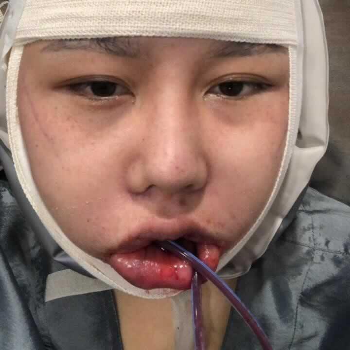 韩国V-LINE瓜子脸手术做完后漂不漂亮你来说。