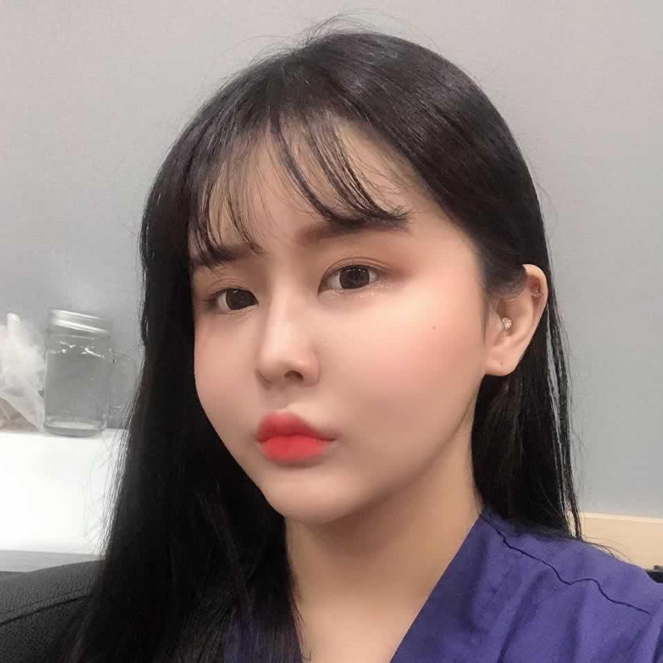 这是我在韩国做完埋线双眼皮手术之后我简直就是女神。