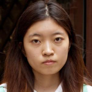 秀秀v-line瓜子脸手术术后照片,肿胀已消90%左右