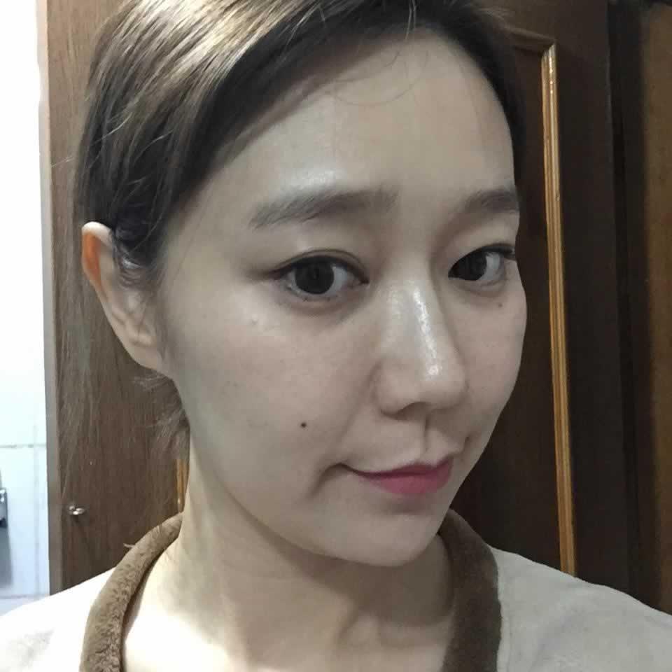 我在韩国做的玻尿酸去法令纹,给大家分享一下。