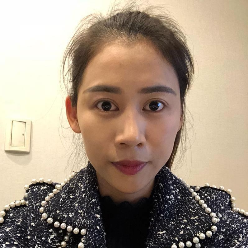 韩国颧骨颧弓整形术术后两个月,我再也不用找角度拍照了