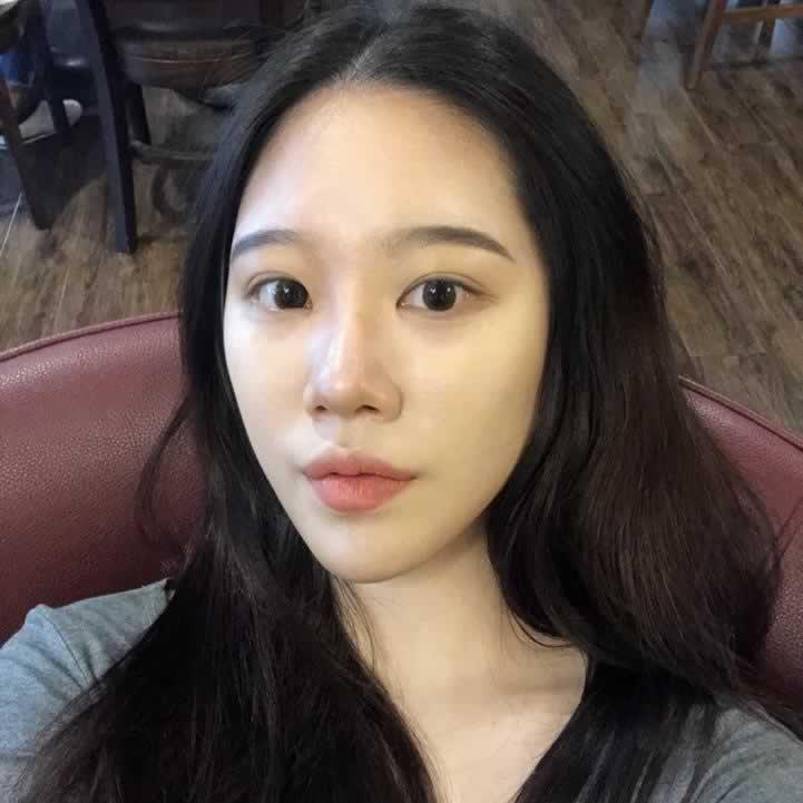 给你们看看我在韩国做完鼻中隔软骨隆鼻两个月后的效果怎么样?