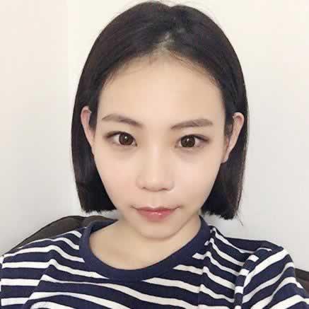 韩国下颌角整形让我变得更加漂亮,我真是太满意了。