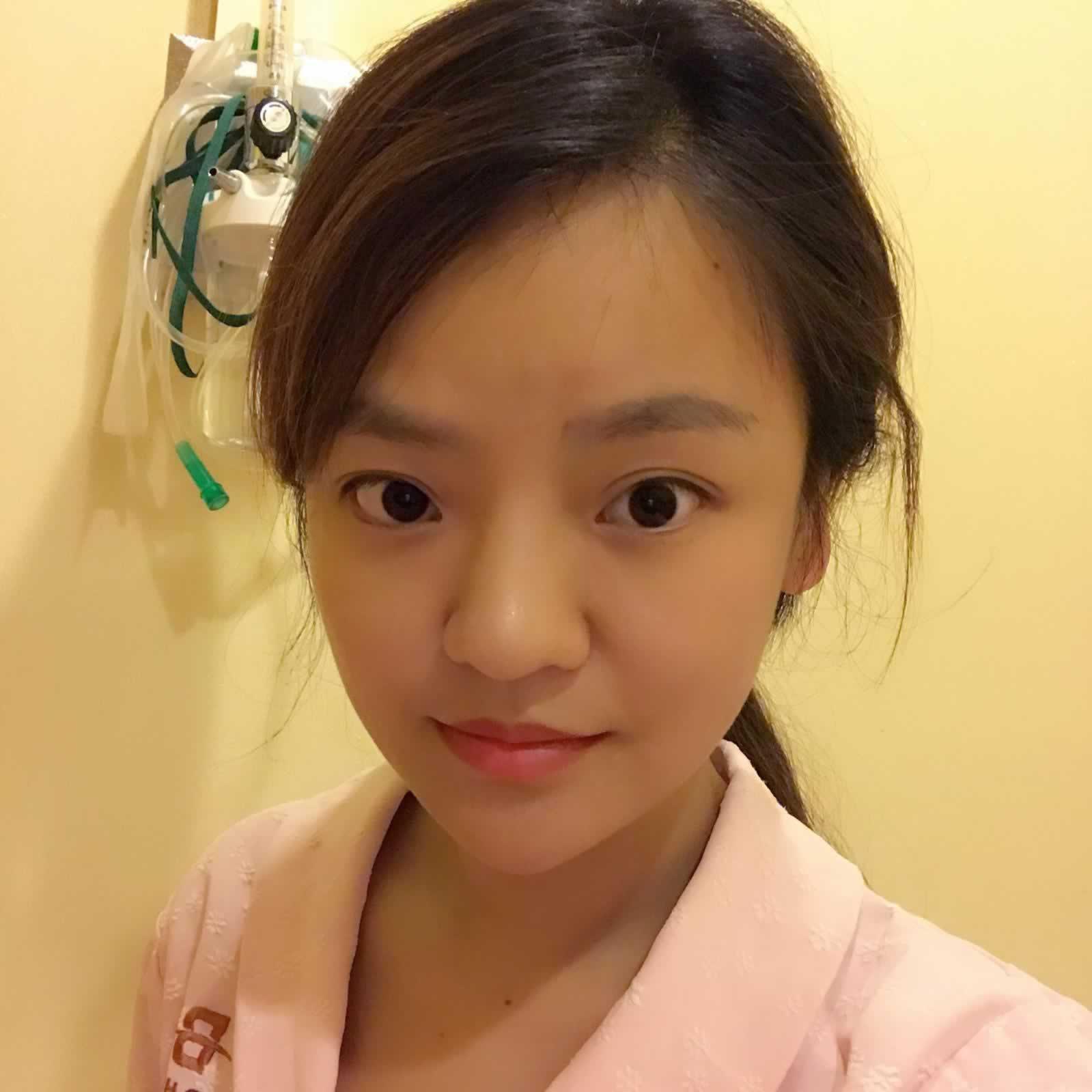 从韩国做完鼻中隔软骨隆鼻这半年多的恢复效果给大家分享一下。