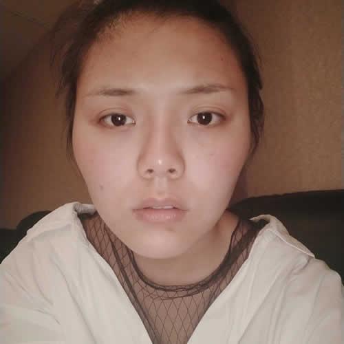 轮廓手术后恢复期前三个月一带要有耐心,出现明显变化是在三个月后哦,我是在韩国做的轮廓手术