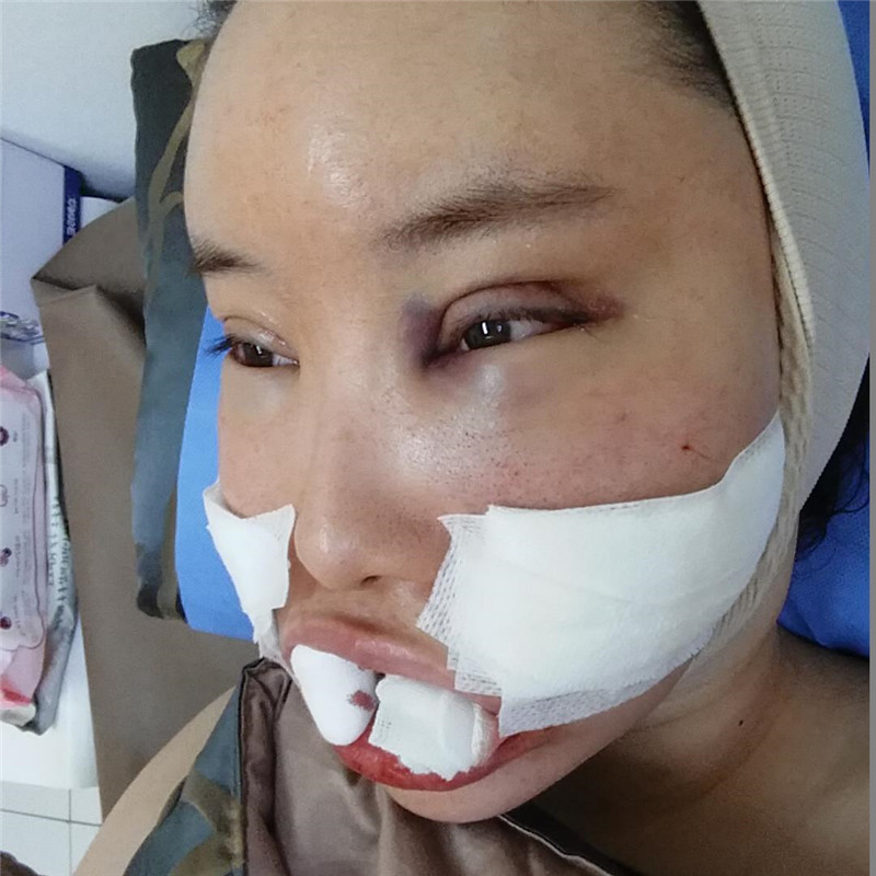 面部吸脂和脂肪填充全脸两个手术可以一起做吗?来看看我在韩国做的整形案例吧。