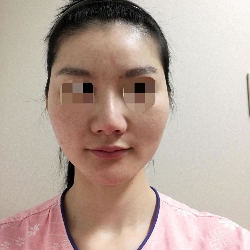 更新我在韩国医院颧骨颧弓整形术恢复2个月的手术案例图