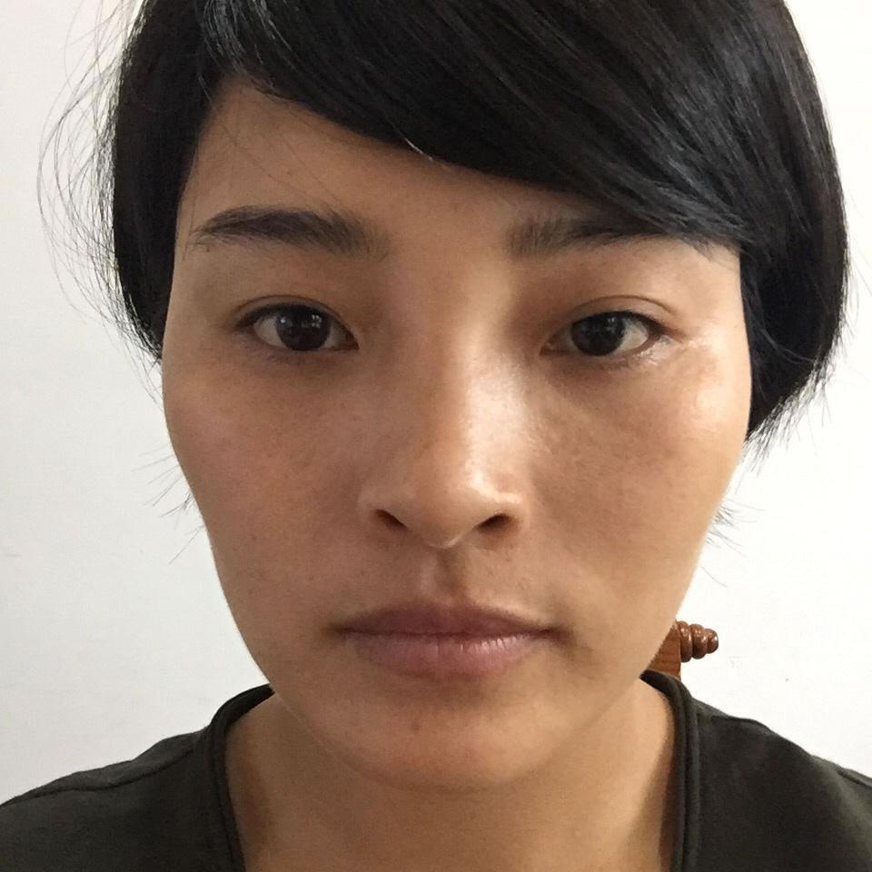 价格不等的下颌角整形方案,在韩国做了才知道价格相差在改脸型项目