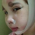 我很开心在韩国整容医院做V-LINE手术后脸瘦到现在的模样