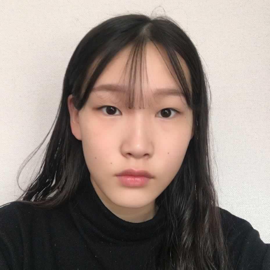 上眼提肌好不好?在韩国做的效果感觉还不错。