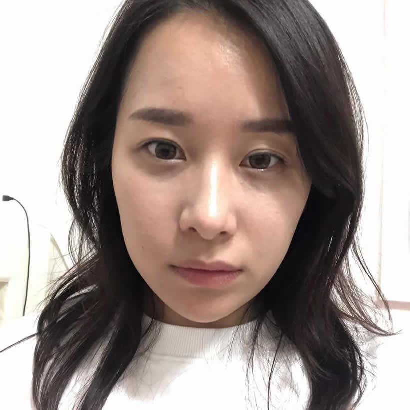 眼综合和隆鼻1到15天的效果图,在韩国做的朋友都夸我漂亮。