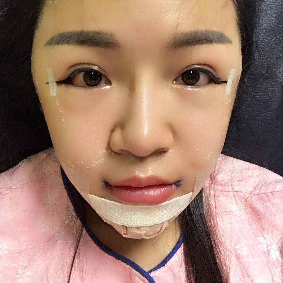 到韩国这家医院做下颌角手术180天,身边好多小姐妹看到效果后也想做