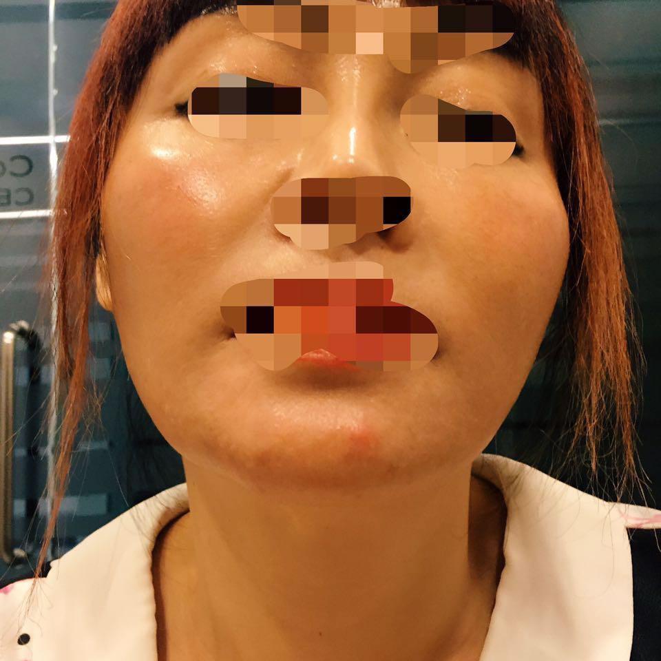 跟大家说说关于我去韩国医院做颧骨整形手术后的一些心里话