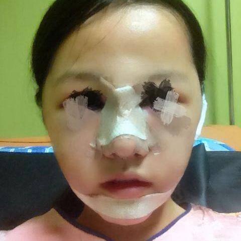 找韩国整容医院做了去颧骨,感觉效果很棒手术费用也不贵