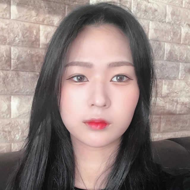 驼峰鼻改造怎么样?幸亏去韩国做了很满意。