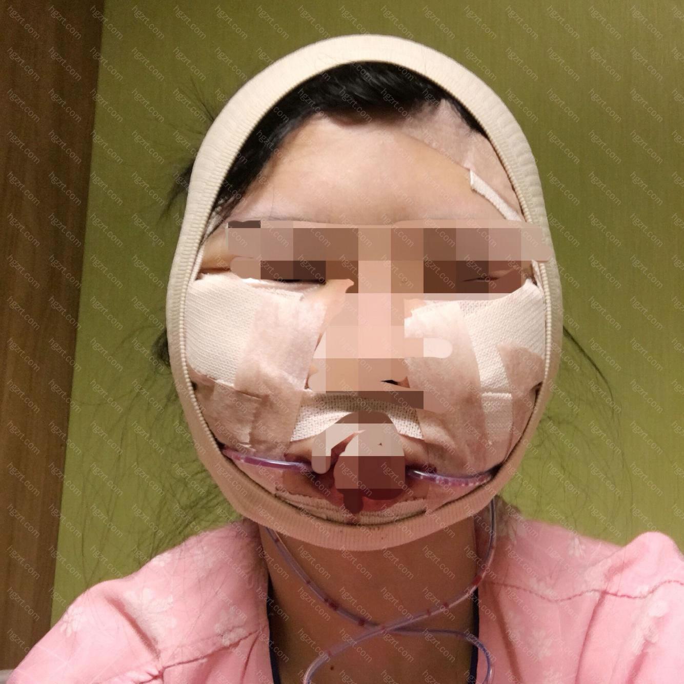 手术后两三个小时的样子