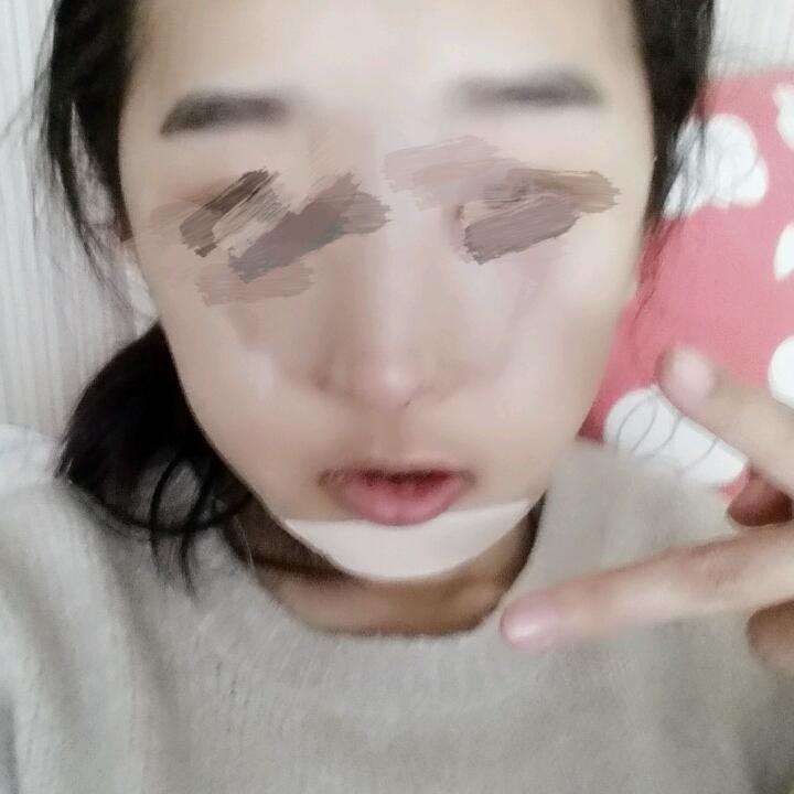 没想到花这点钱找韩国整容医院做驼峰鼻矫正术+轮廓手术后,改变这么大