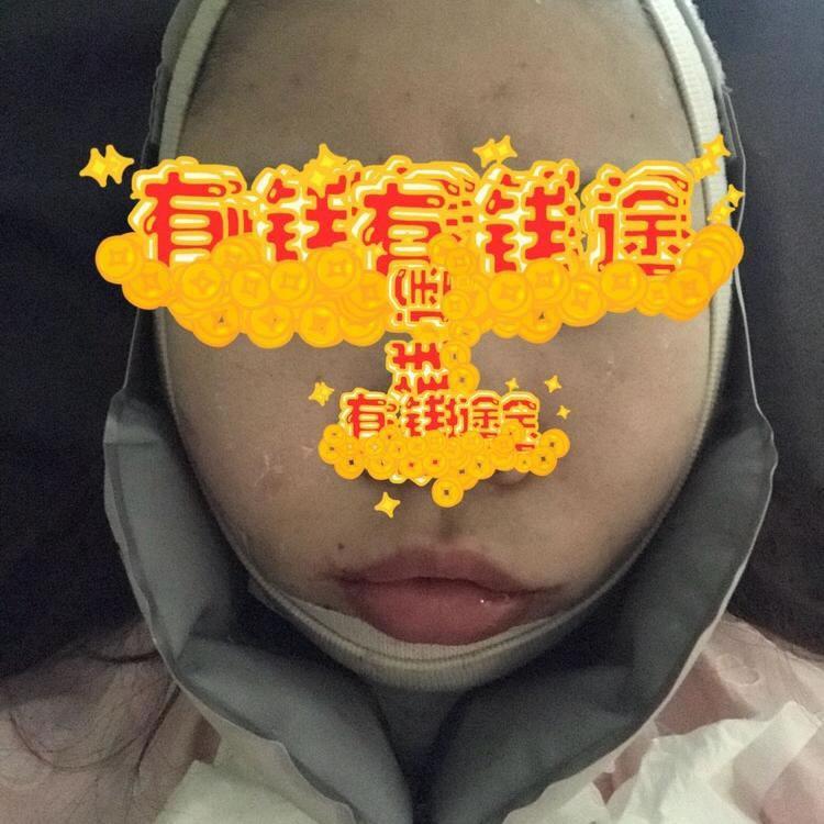 前段时间刚在韩国医院做完面部吸脂的我,来说说恢复那些事儿