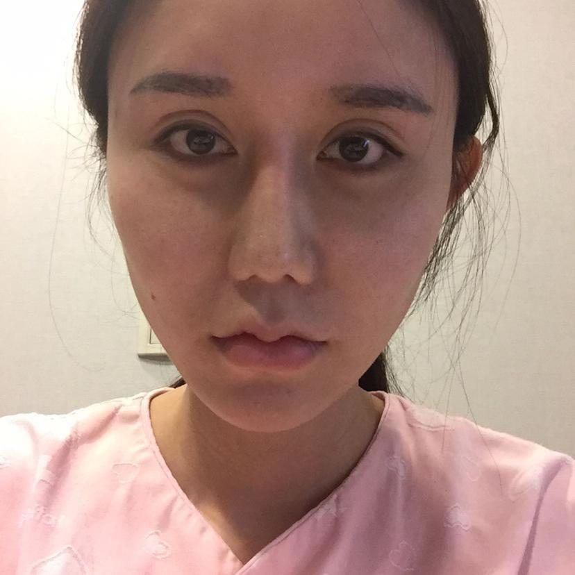 在韩国医院全麻做的颧骨颧弓整形到今天也算是有点甜头了
