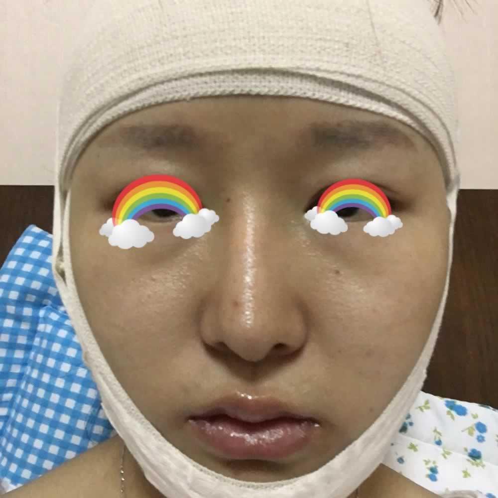 分享一下在韩国做的下巴截骨术,这种大手术一定要选择靠谱的整形医院。