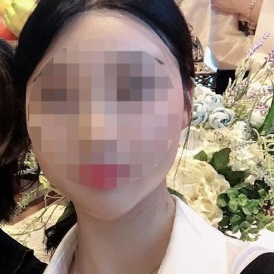 """选择有磨骨资质的韩国整容医院做颧骨整形后改善了我的""""鞋拔子""""脸"""