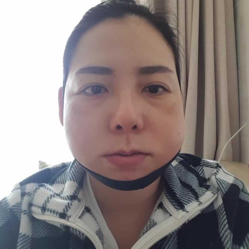 我在韩国做下颌角切除手术的这家医院真的超级有名,感兴趣的宝宝赶紧来看看吧!