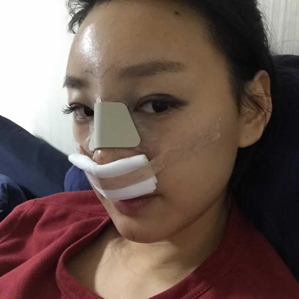 在韩国做双眼皮+硅胶隆鼻+额头填充,做完后飞机都蹬不去解释了半天才让上