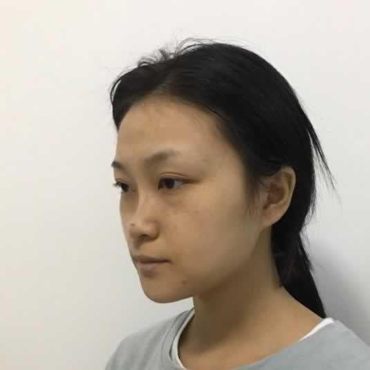 做鼻综合真的可以让鼻子变的更好看吗?看看那我的分享就知道了。