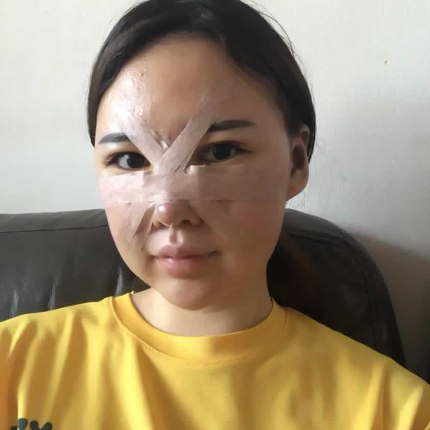 医生开始根据我的面部帮我进行设计