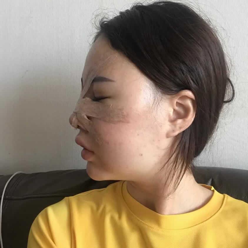 今天是做隆鼻手术的第五天
