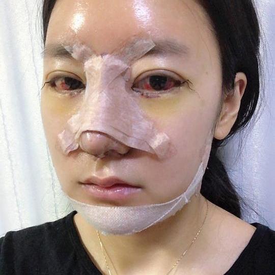 后来才听别的同学说她去韩国做了双鄂手术才变这么漂亮的