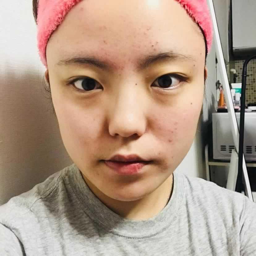 做了埋线提升,感觉拉的太紧了,可以去找医生再松一松吗?我在韩国做的术后效果很好。