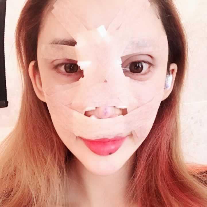 硅胶隆鼻能放一辈子吗?韩国做的鼻子应该可以用一辈子吧,我只要现在好看就行。