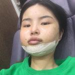欢迎大家来看我在韩国整容医院的V-LINE瓜子脸手术恢复记录