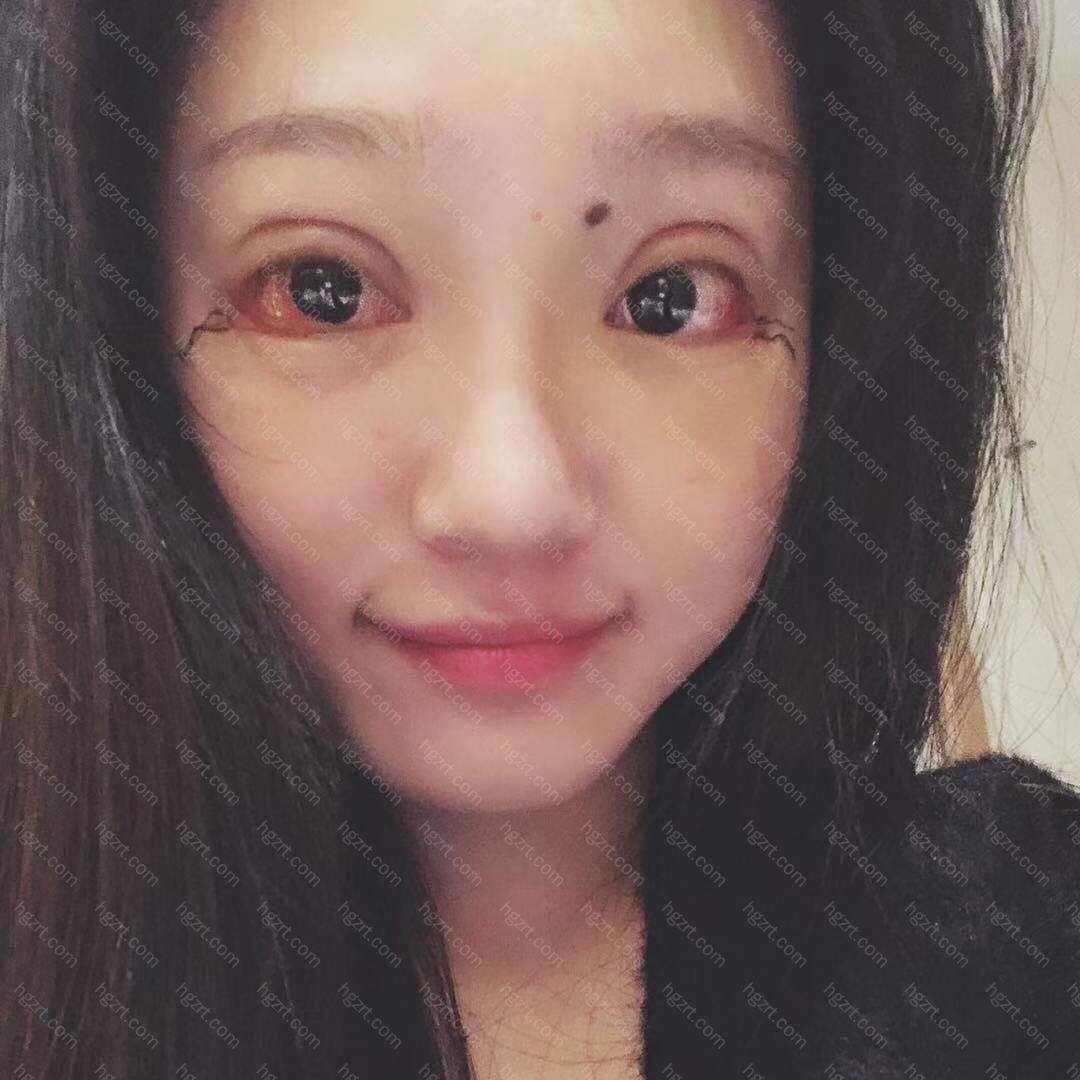 室长说拆线后2周眼部可以化妆