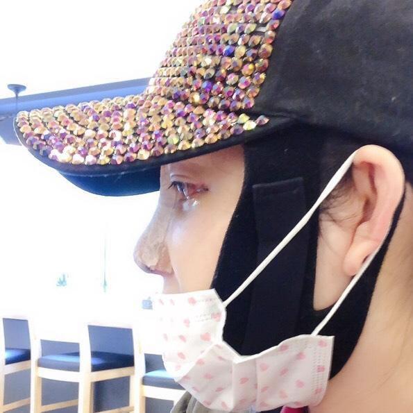 上个月来韩国面诊了几家医院院长都推测说我的鼻尖是因为没有固定好的原因