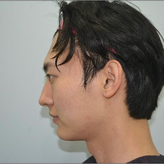 得知这家首尔整容医院是很有名的后,我到这做了v-line瓜子脸手术