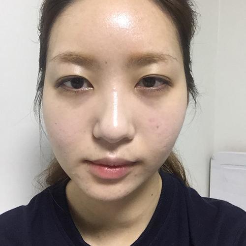 自己亲自去韩国经历的下巴截骨手术过程分享,真的没有后悔哦。