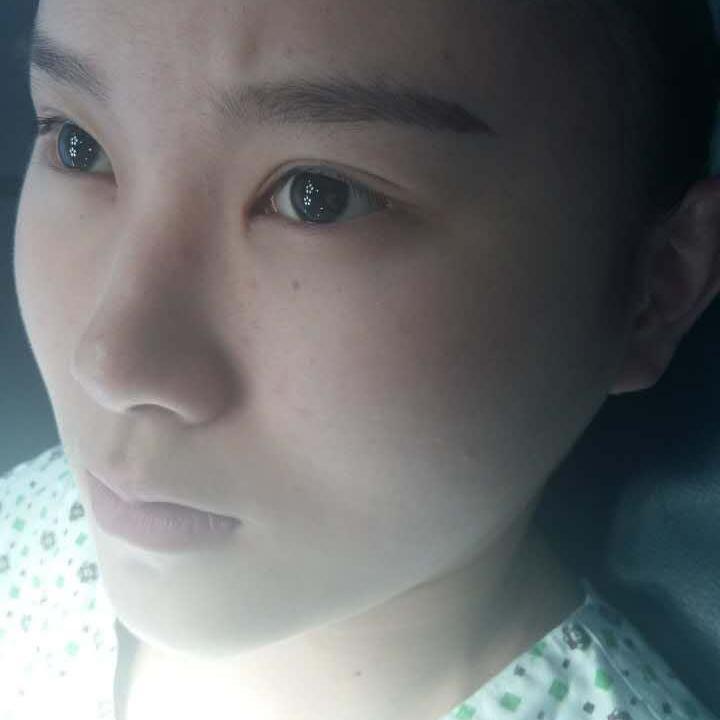一篇在韩国整形医院做眼角下至术术后心得分享给大家