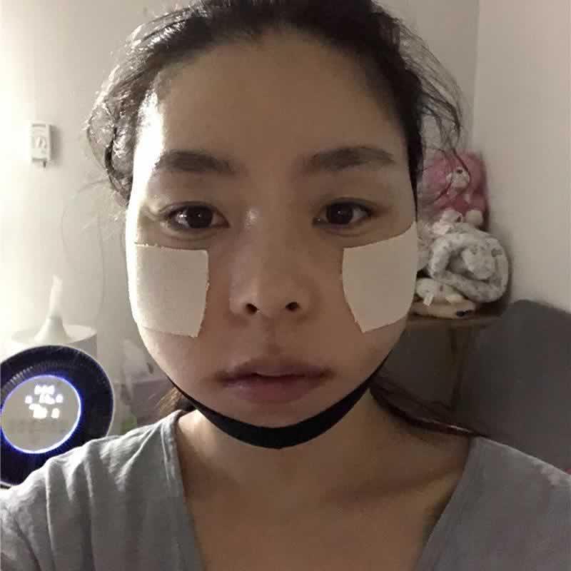 韩国id整形外科果然是韩国面部轮廓医院排名靠前的医院,来看看我的效果你就知道这家医院有多棒了。