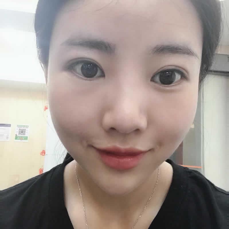 在韩国纯真医院做的鼻部多项手术真的很棒,真心给院长点赞。