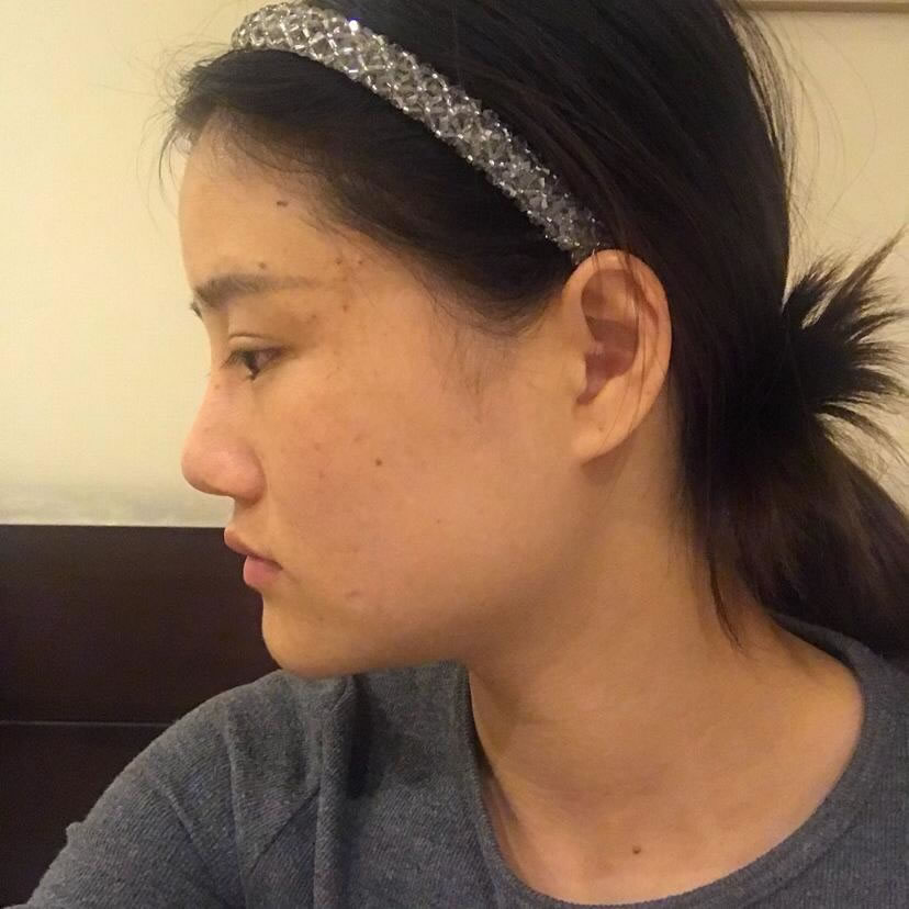 在韩国佳轮韩医院做了颧骨颧弓整形术后,我才相信他们医院没有换手和影子医生这么一说