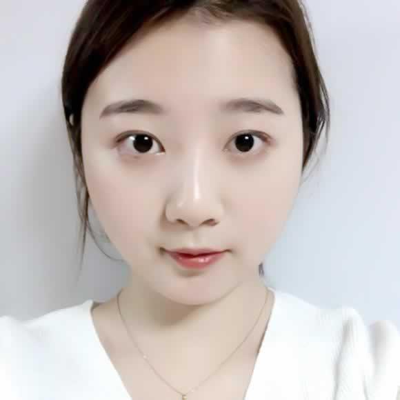 鼻部修复手术一定要优选韩国原辰,大医院就是放心,效果超好。