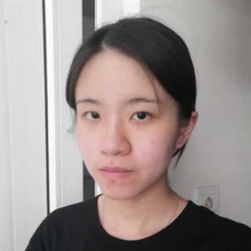 埋线双眼皮做完之后会不会越来越丑,在北京做的手术让我很满意。