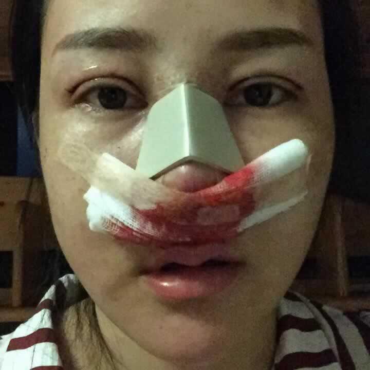 听说韩国原辰整形医院硅胶隆鼻做的好,有没有在韩国原辰整形医院做过整形的?