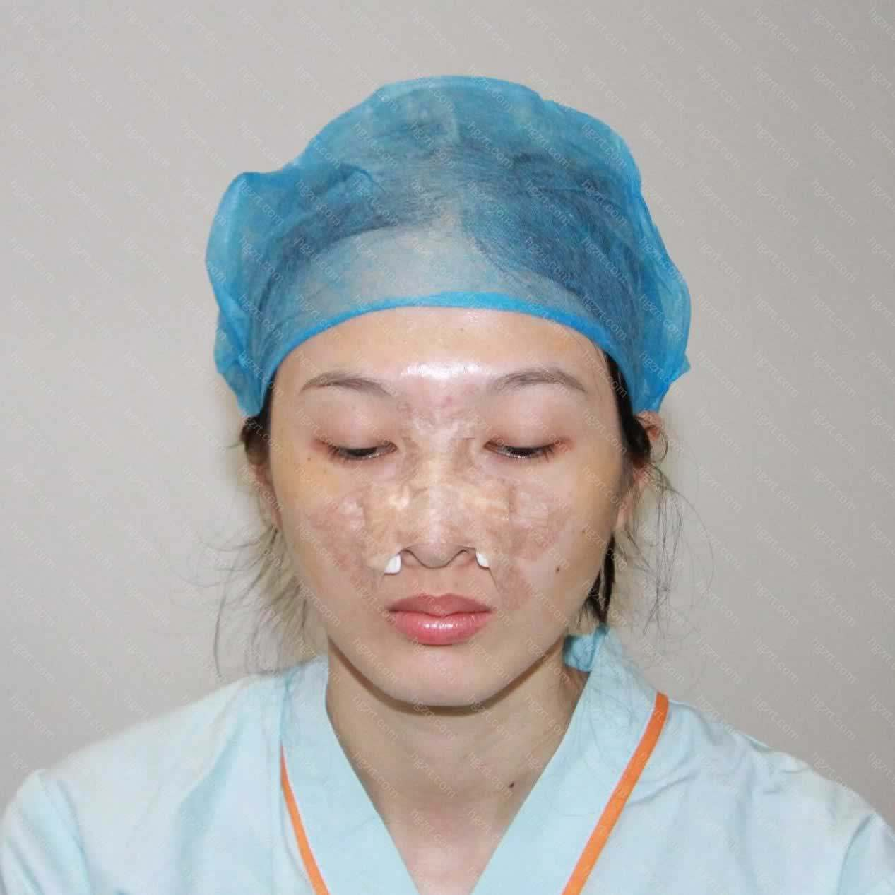 但是这一次做了鼻子手术后
