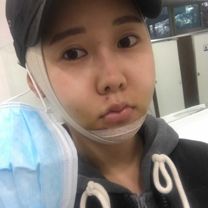 果然还是深圳艺星医疗美容医院颧弓颧骨整形效果好,不信的看过来。