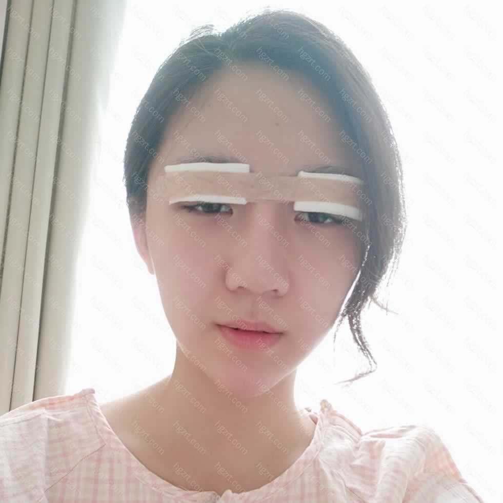 【切开双眼皮第4天】术后:在麻药后有痛感
